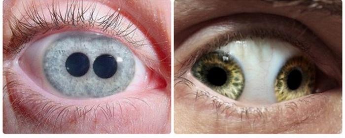 заболевание глаз у человека фото